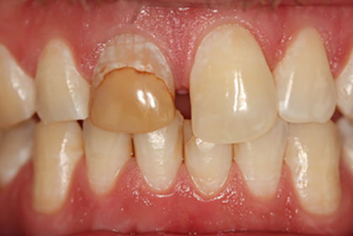 Установка зубной коронки №9