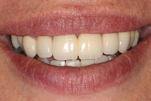 Установка зубных коронок №8