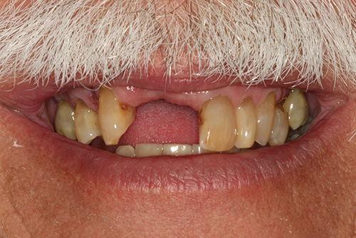Установка зубных коронок №7