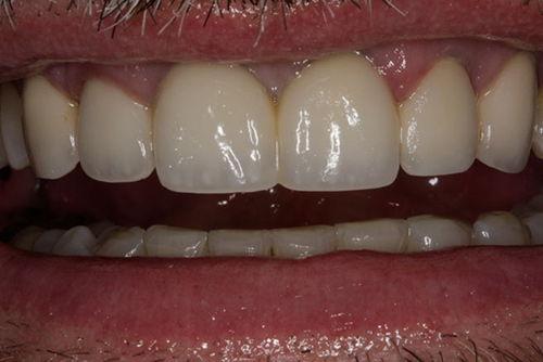Установка зубных коронок №5