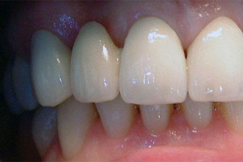 Установка зубного моста №8