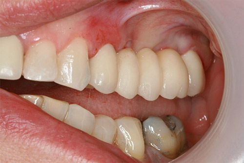 Установка зубного моста №4
