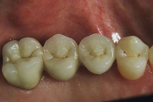 Установка зубного моста №6