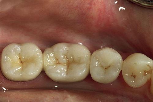 Установка зубного моста №7
