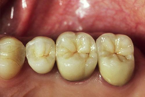 Установка зубного моста №3