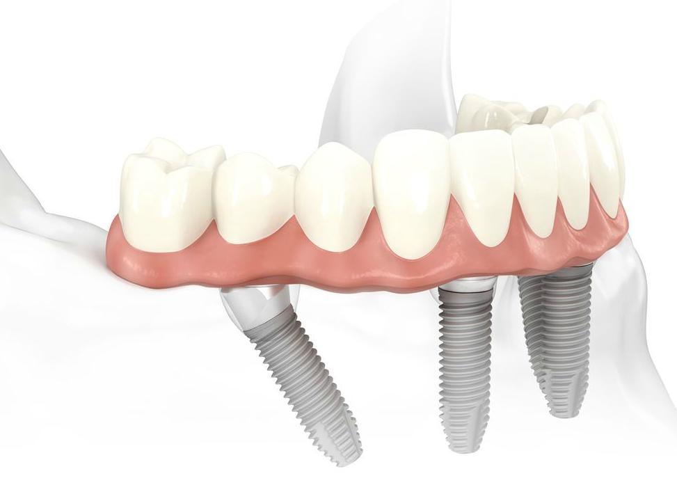 Комплекс All-on-4 (Nobel Biocare) — Новые зубы за 1 день