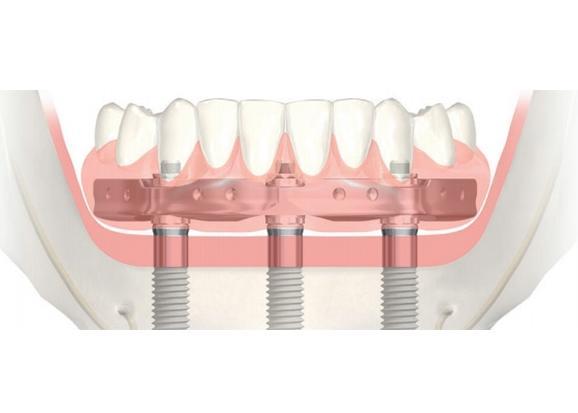 Комплекс All-on-3 Trefoil (Nobel Biocare) — Новые зубы за 1 день