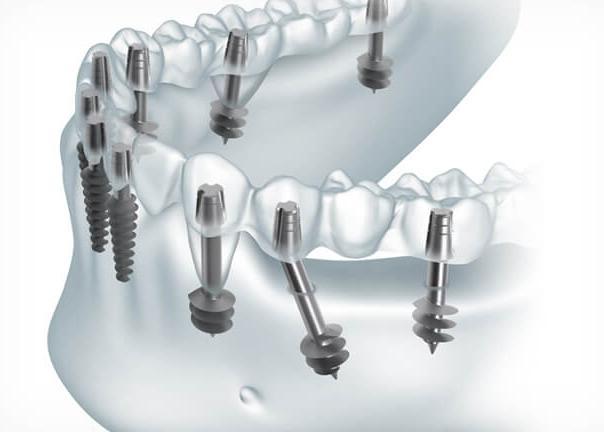 Комплекс на 8-12 базальных имплантах BIOMED — Новые зубы за 3 дня