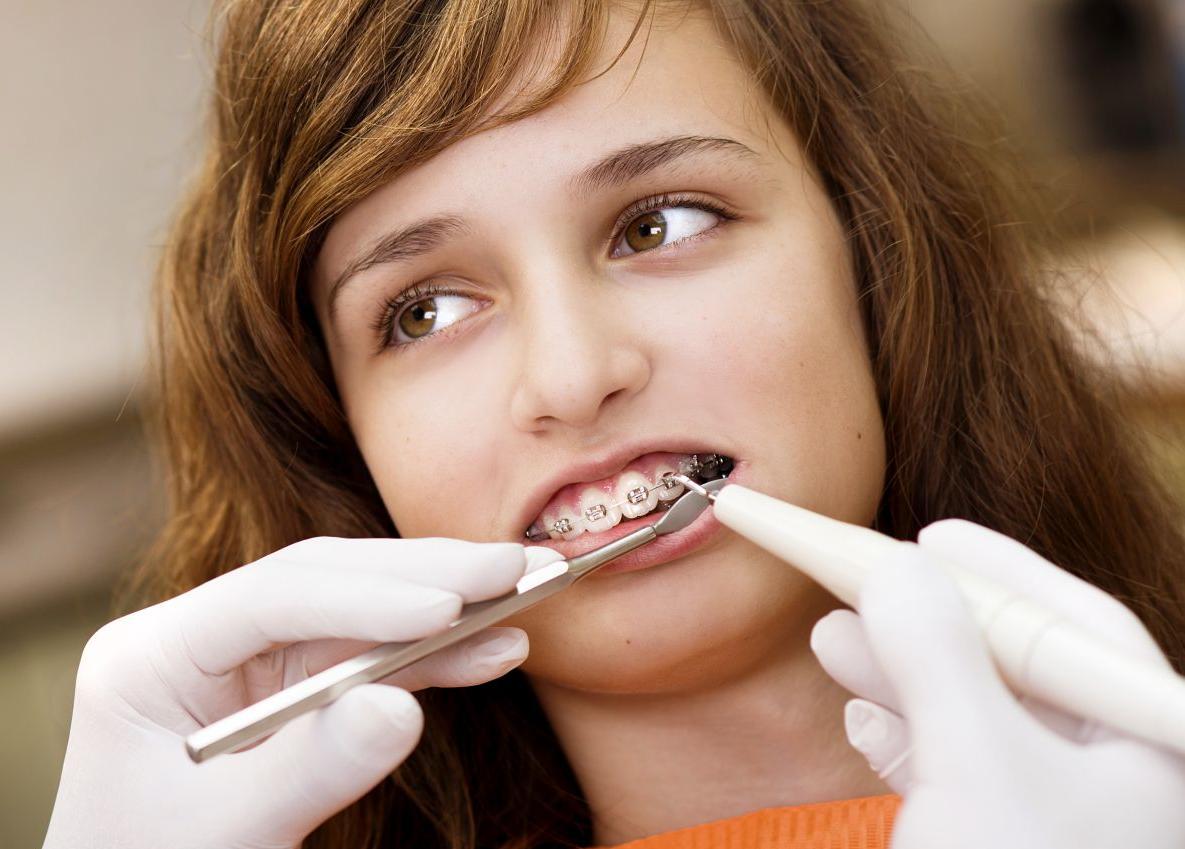 Ортодонтическое лечение на 1 год