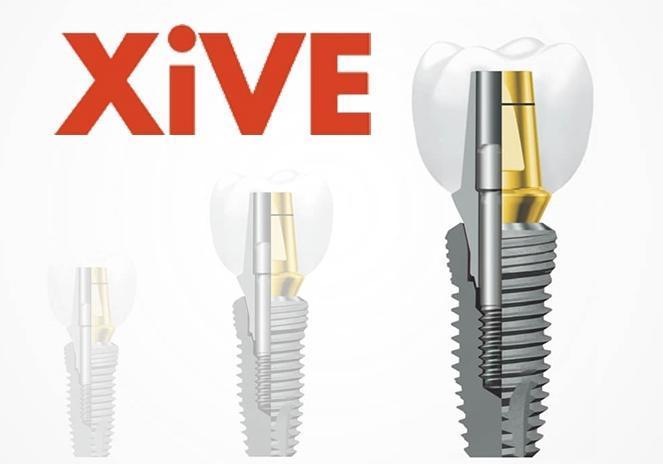 Имплант Xive с коронкой из металлокерамики