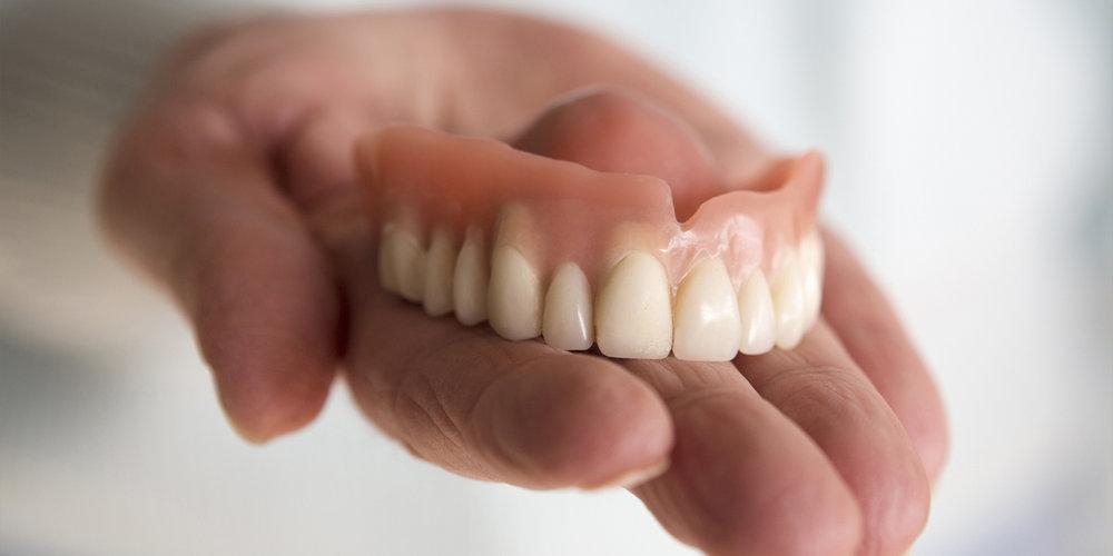 что такое зубные протезы