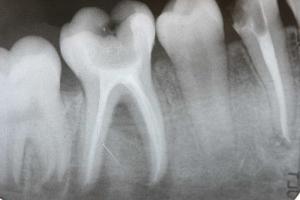 проведение рентгена зубов