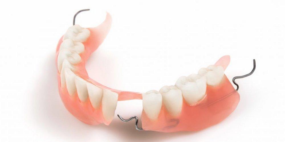 частичный съемный зубный протез