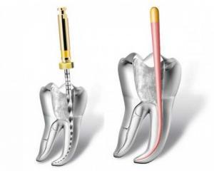 пломбирование канала зуба гутаперчевым штифтом