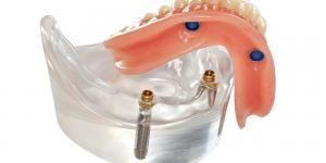 зубные протезы на имплантатах
