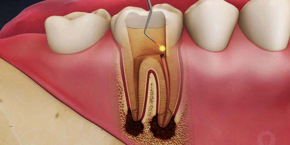 пломбирование каналов зуба при периодонтите
