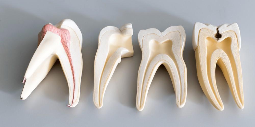 когда нужно лечить каналы зубов