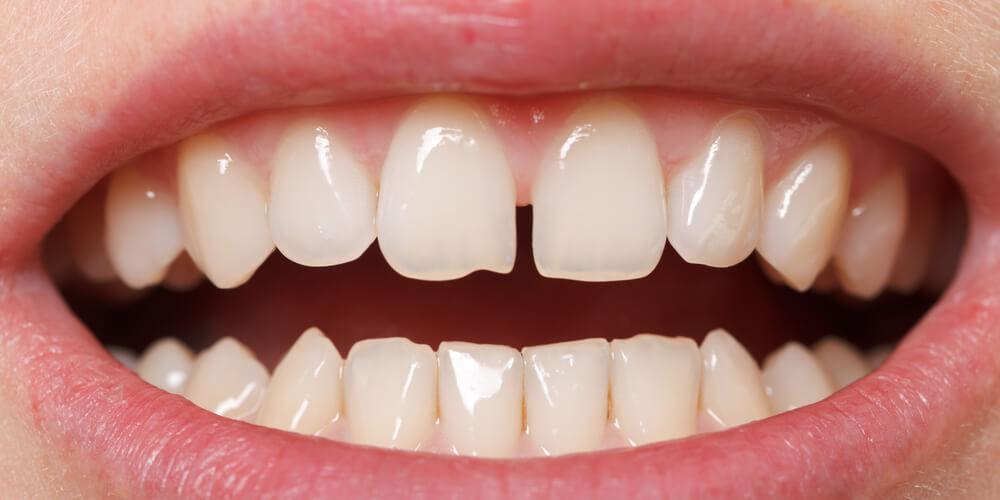 щели между зубами и протезирование