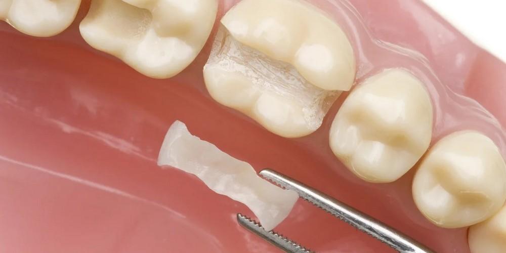 установки зубной вкладки