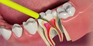 удаление нерва зуба перед протезированием