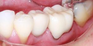 кариес под зубной коронкой