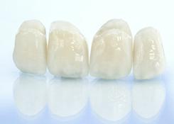 Керамокомпозитная зубная коронка