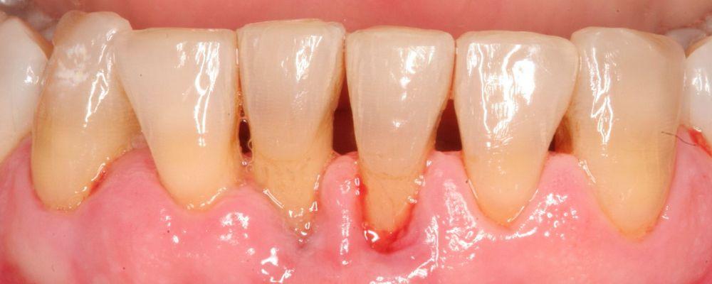 воспаление десен и полости рта