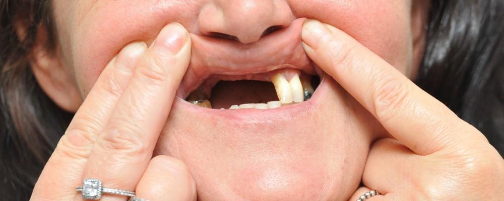отсутствует много зубов подряд