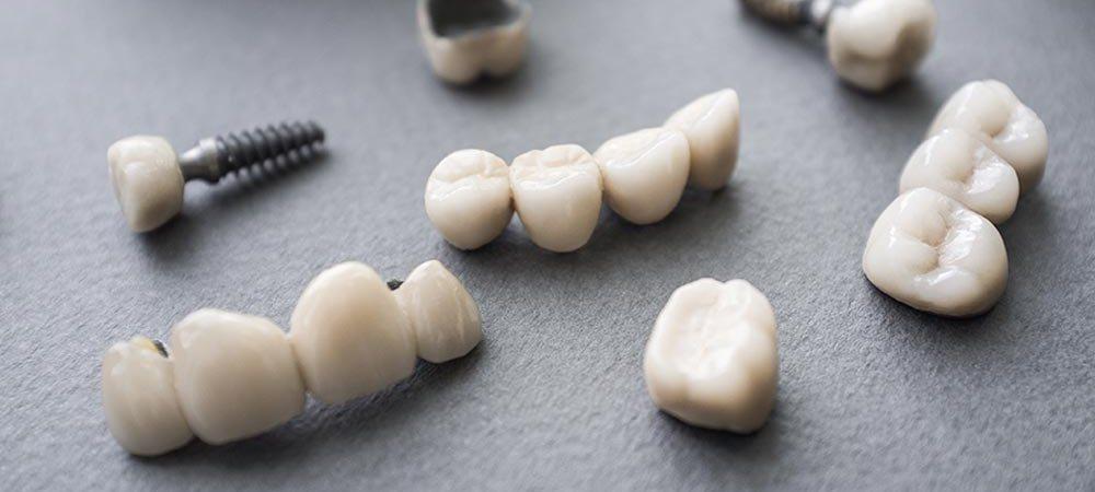из каких материалов производятся зубные коронки и мосты