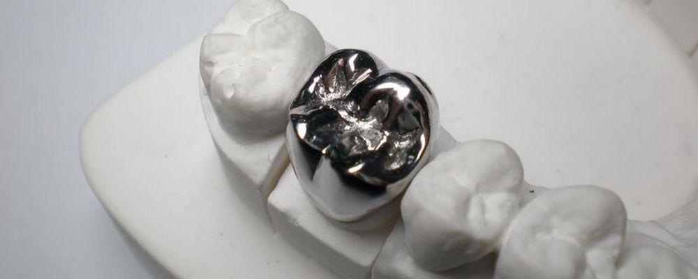 из чего производятся металлические коронки