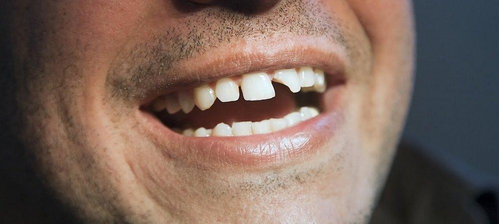 Разрушение зуба на половину