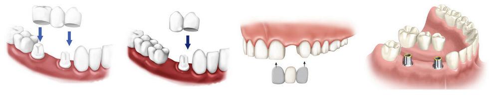 виды мостовидных зубных протезов