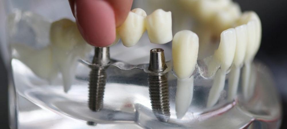 зубной мост с опорой на имплантаты