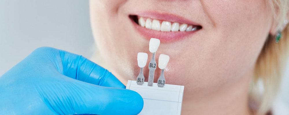 примерка виниров на зубы