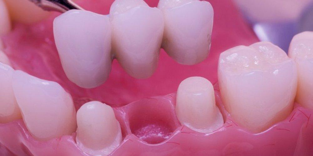 как крепится мост на зубах