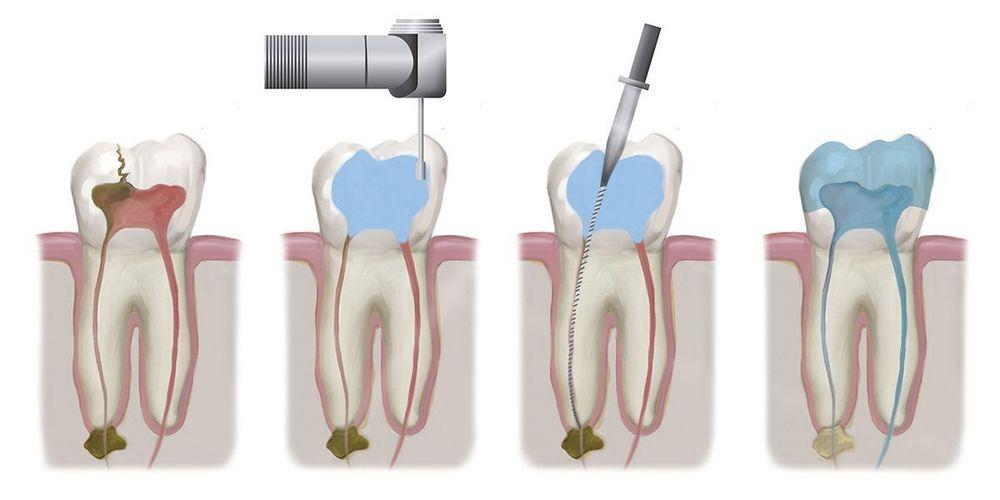 перед протезированием нужно вылечить зуб