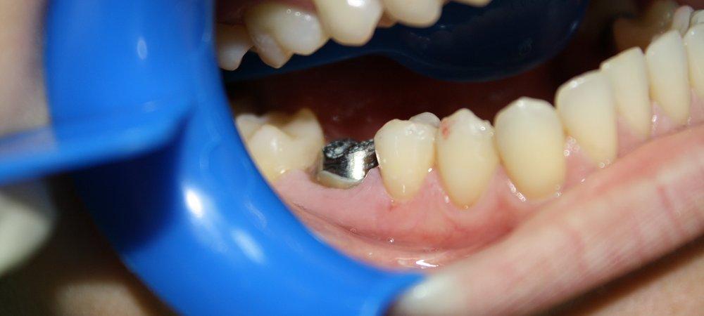 зуб будет крепче если его укрепить вкладкой и штифтом