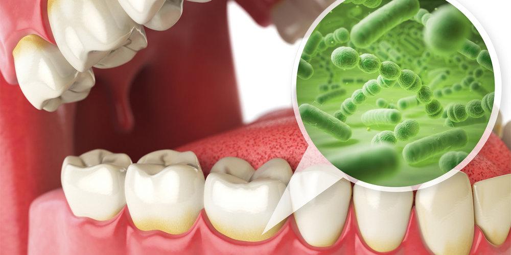 плохая гигиена полости рта может привести к заболеваниям