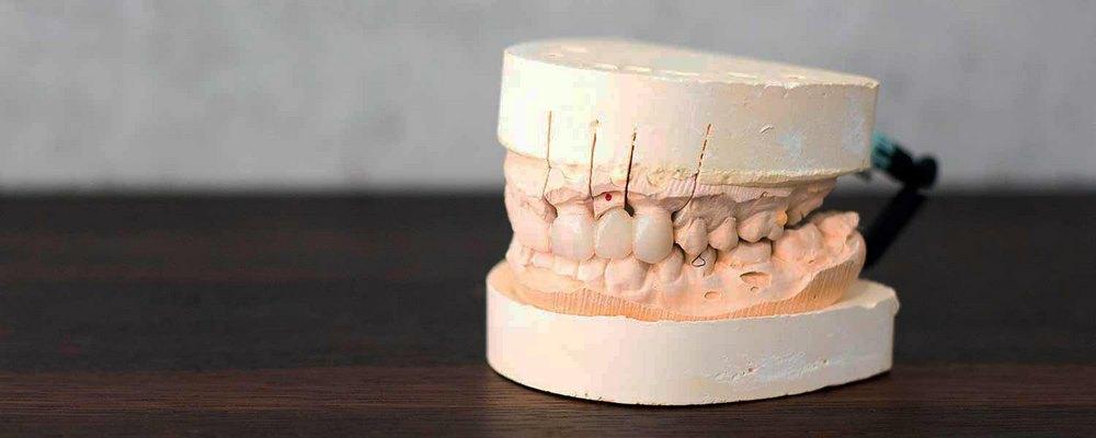 проведение ремонта зубного моста