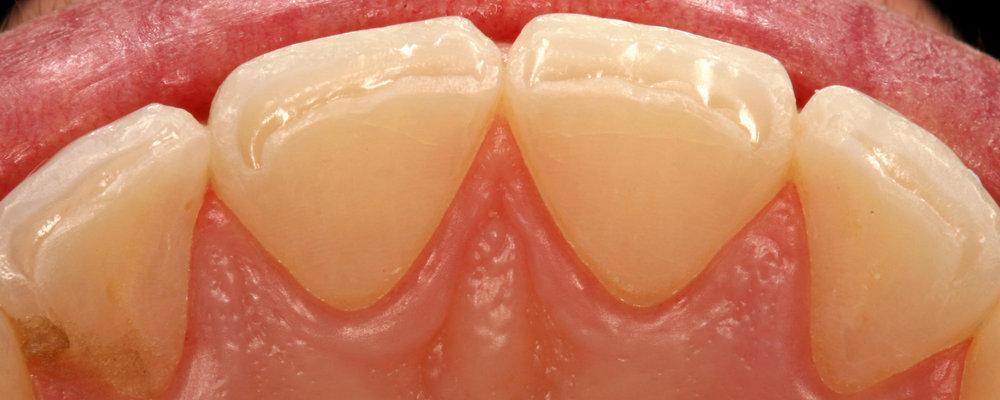 как выглядит стираемость эмали зубов