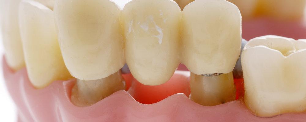 какие показания для установки зубного моста