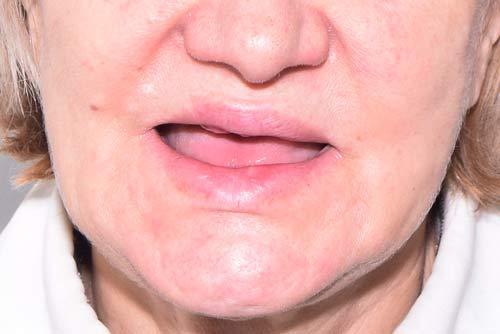 Пример имплантации зубов №3