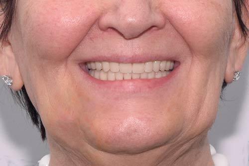 Пример имплантации зубов №7