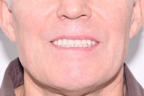 Пример имплантации зубов №15