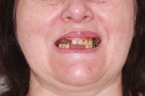 Пример имплантации зубов №9