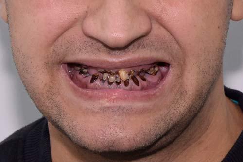 Пример имплантации зубов №2