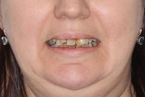 Пример имплантации зубов №5