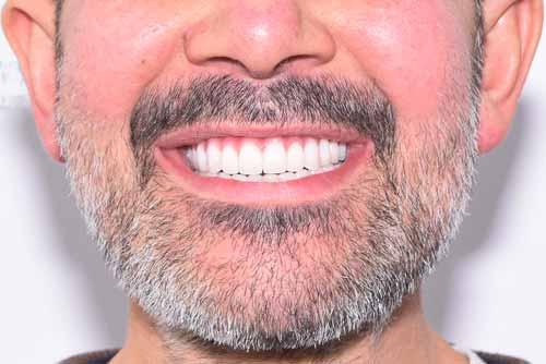 Пример имплантации зубов №4