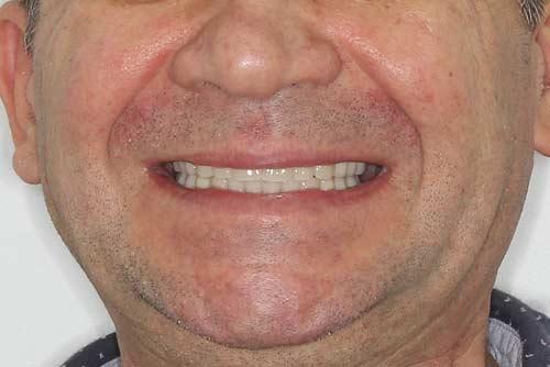 Пример имплантации зубов №8