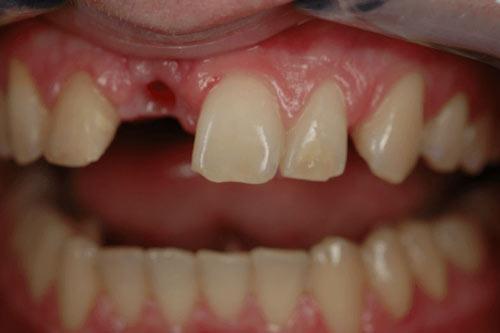 Пример имплантации зубов №13